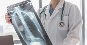 Tanulságos röntgenkép - Félrenyelt a gyerek