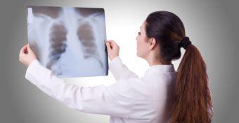 Kilégzési teszt a daganatszűrésben