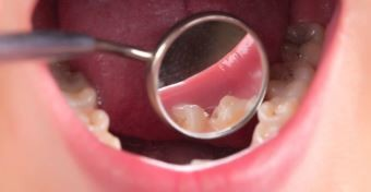 A fogszuvasod�s a vil�g leggyakoribb betegs�ge