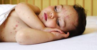 Bárányhimlő tünetei és kezelése gyerekeknél