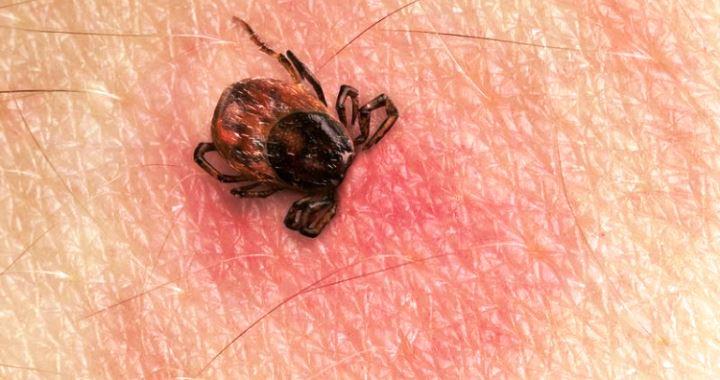 A Lyme-kór tünetei gyerekeknél
