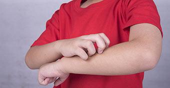 Miről ismerheted fel a gyereken az ágyi poloska csípést?