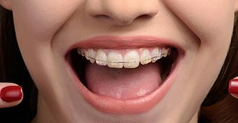 Nem csak esztétikai okokból fontos a fogszabályozás