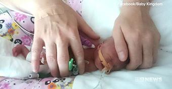 Kész csoda: életben maradt a 422 grammos baba