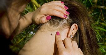 Lebénult egy 5 éves kislány a kullancscsípéstől
