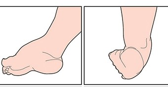 A születéskor észlelhető lábproblémák