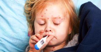 Kanyaró tünetei és kezelése gyerekeknél