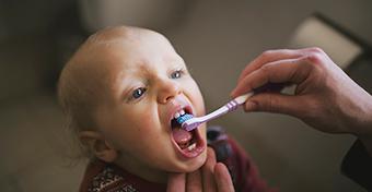 A gyerekkori fogszuvasodás akár már egy éves kor alatt is elkezdődhet