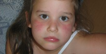 Lepkeszárny-betegség