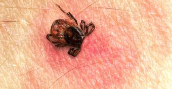 Lyme-kór tünetei gyerekeknél