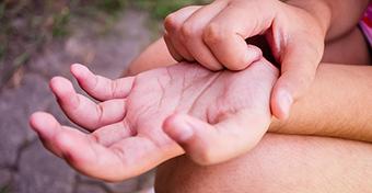 Tenyéren, talpon, ujjakon is jelentkezhet ekcéma