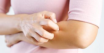 Ilyen tüneteket okoz a gyógyszerallergia