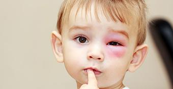 Nem használ az allergiára a kalcium?