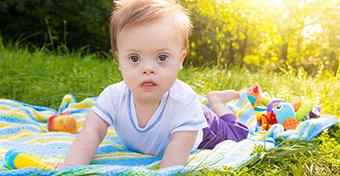 Minden Down-szindrómás gyereknél megoldott a helyreállító szívműtét