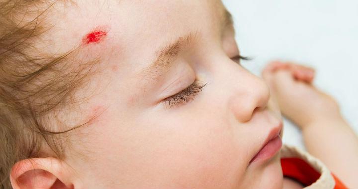 dermatitis az arcon vörös foltok pikkelysömör kezelése a gyógyítók által