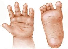 down kór tünetei újszülötteknél