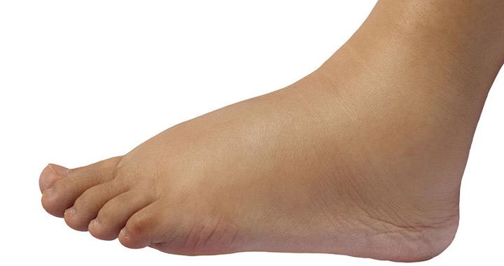 láb szemölcsök a terhesség alatt gyomor- és parazita elleni gyógyszerek