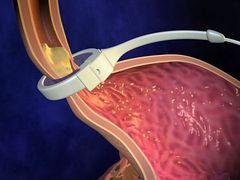 Laparoszkópiás gyomorszűkítés